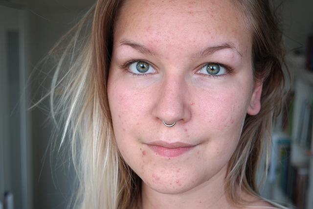 Stoppen met de pil acne
