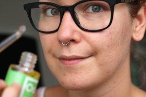 natuurlijke huidverzorging tegen acne littekens