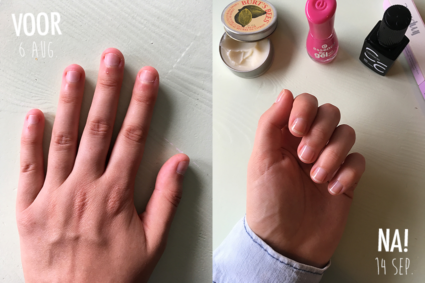 stoppen met nagelbijten voor en na foto